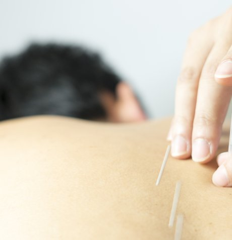 Acupuncture Benefits - MINDBODY